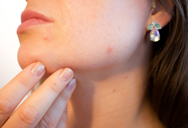 A closeup of a woman's chin with a couple of small pimples