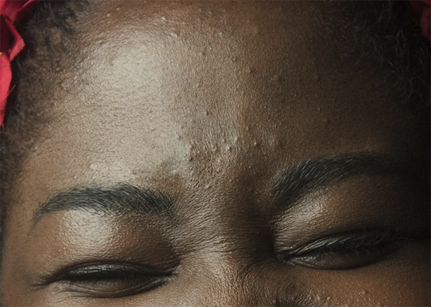 Close up of pimples on forehead in sample image